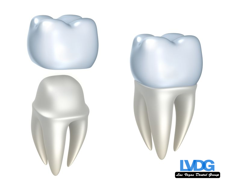 LVDG-dental-crowns