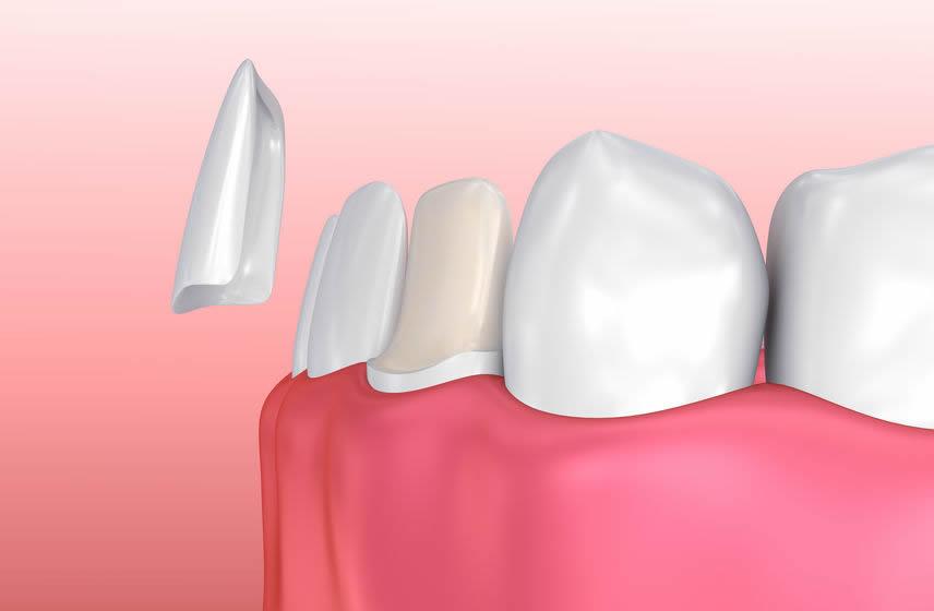 las-vegas-dental-porcelain-veneers