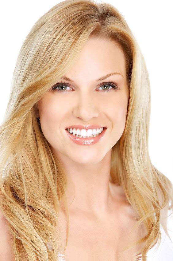 las vegas dental group dental veneers